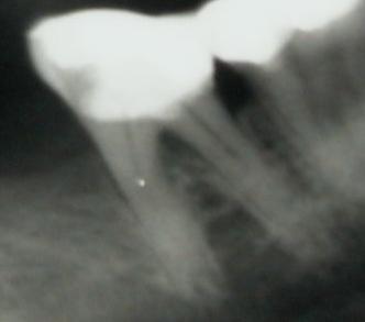 Le cliché radiologique était interprété comme néant à plusieurs reprises.