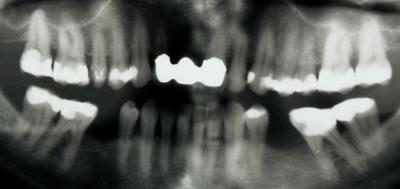 La patiente se plaignait de douleurs spontanées récidivantes dans la région de la dent 36.