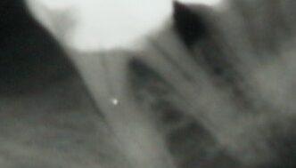 Das Röntgenbild wurde mehrfach als unauffällig befunden