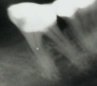 Das Röntgenbild wurde mehrfach als unauffällig befundet.