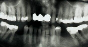 Die Patientin gab wiederkehrende Schmerzen im Bereich des Zahnes 36 an